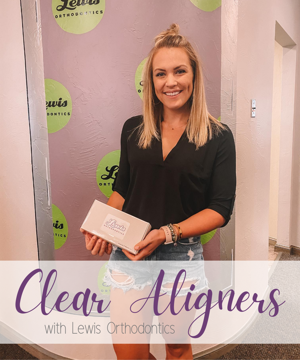 Clear Aligner Q+A   My First 2 Weeks with Lewis Orthodontics
