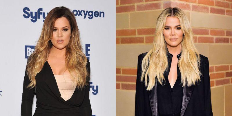 Khloe Kardashian Reveals How Much Plastic Surgery She's Had